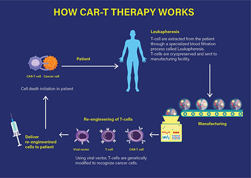 How CAR-T therapy works.